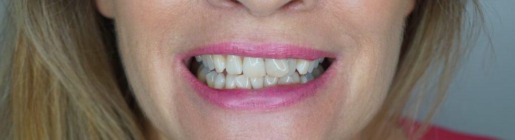 Kokos Tandpasta Tanden Bleken Thuis Mama voor