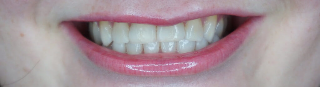 Kokos Tandpasta Tanden Bleken Thuis Eveline voor