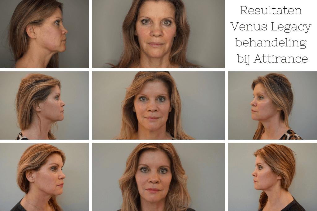 Eindresultaat Venus Legacy behandeling Bij Schoonheidssalon Attirance