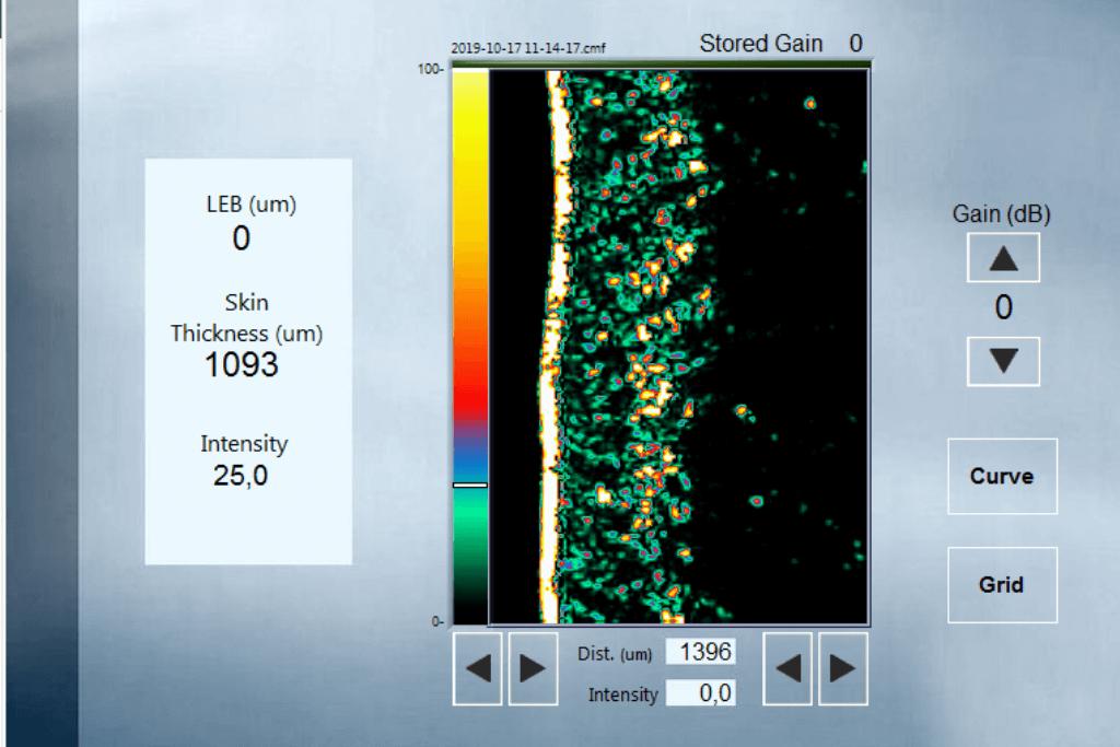 Eveline Cellics derde scan