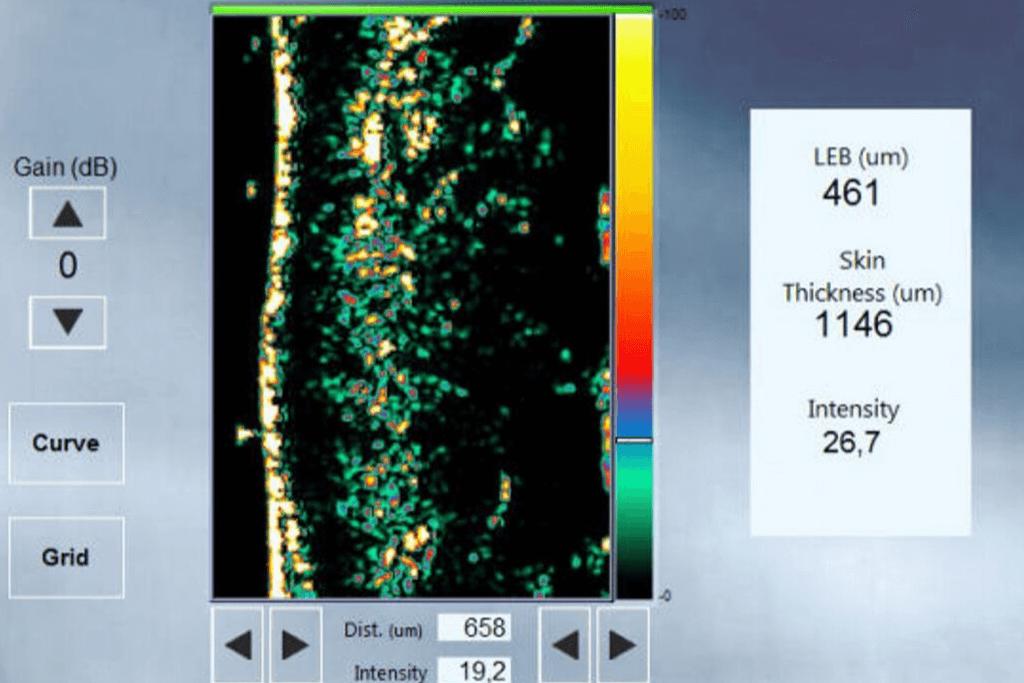 Tweede Collageen scan (huidmeting) bij Uskin