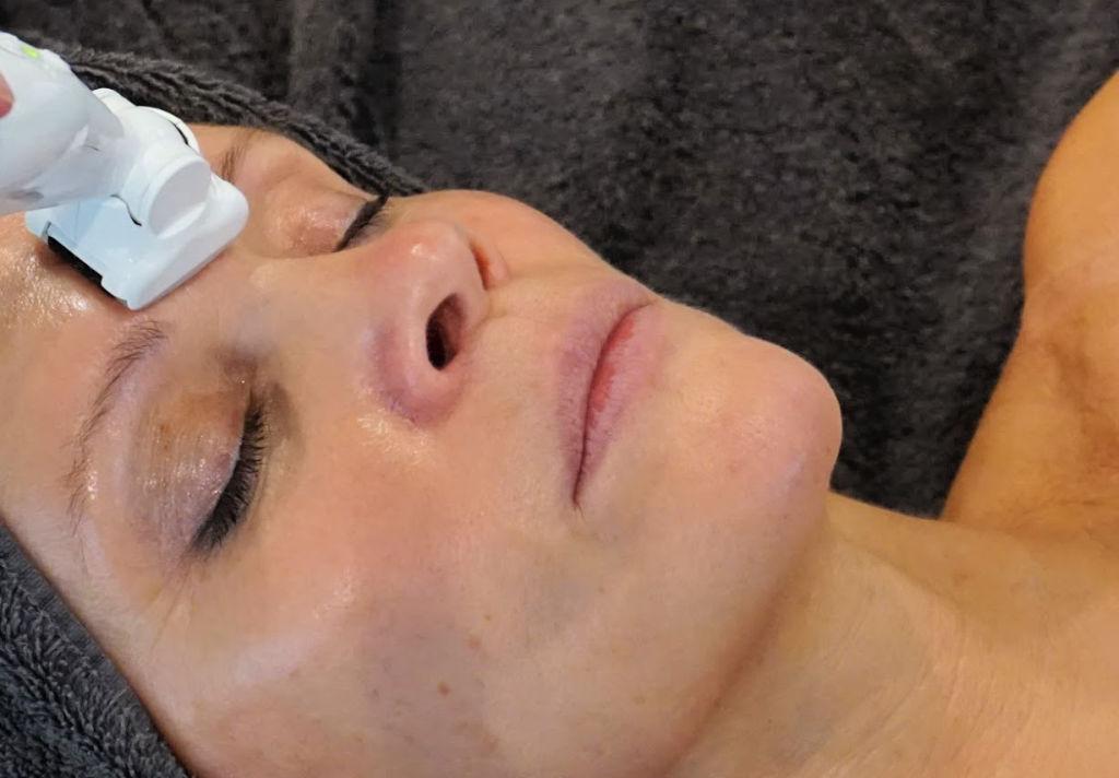 Icoone LASER all-in-one anti-aging beauty behandeling voor gezicht, hals & decolleté | Wilma