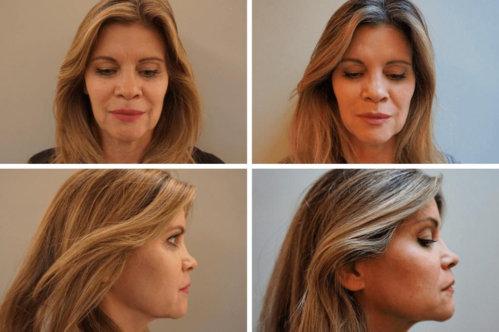 Voor en na foto's - na 6 behandelingen micro-needling mesotherapie