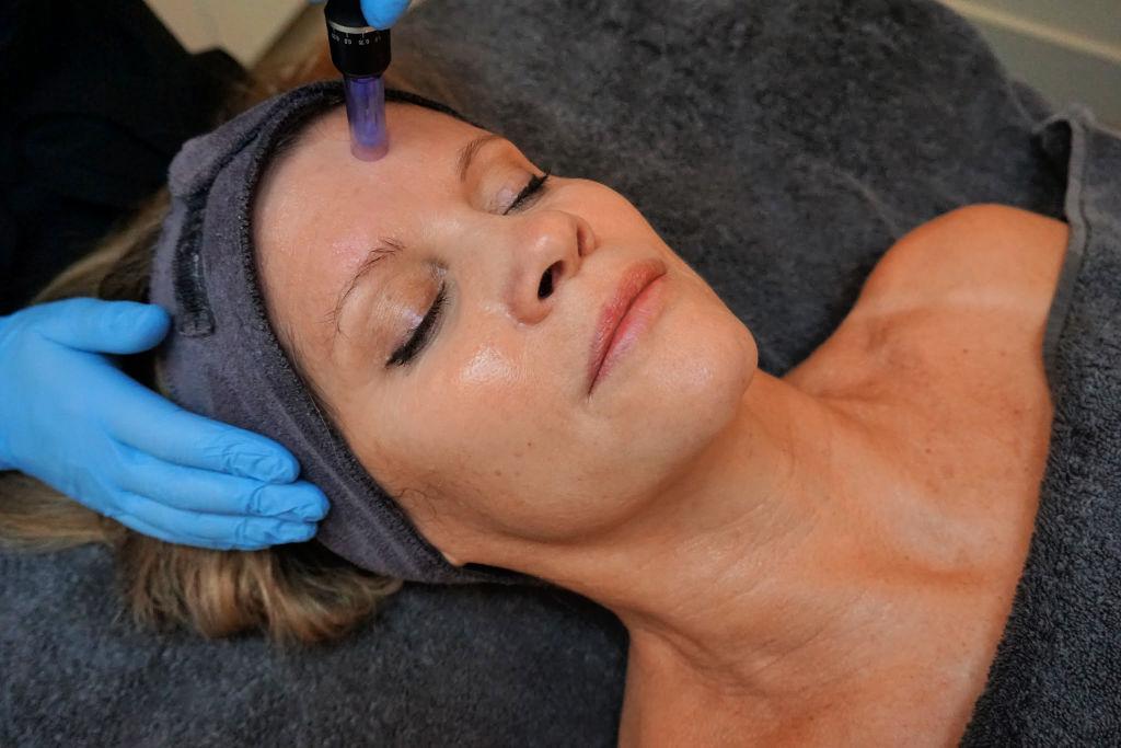 Mesotherapie (microneedling + werkstoffen in de diepere huidlagen inbrengen) bij Attirance